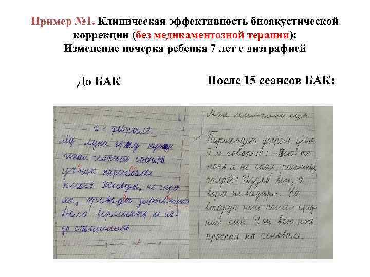 Пример № 1. Клиническая эффективность биоакустической коррекции (без медикаментозной терапии): Изменение почерка ребенка 7