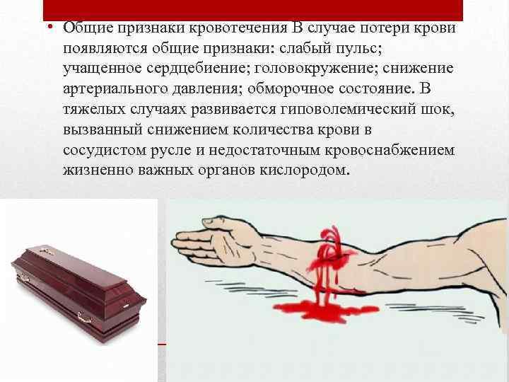 При потере крови головокружение