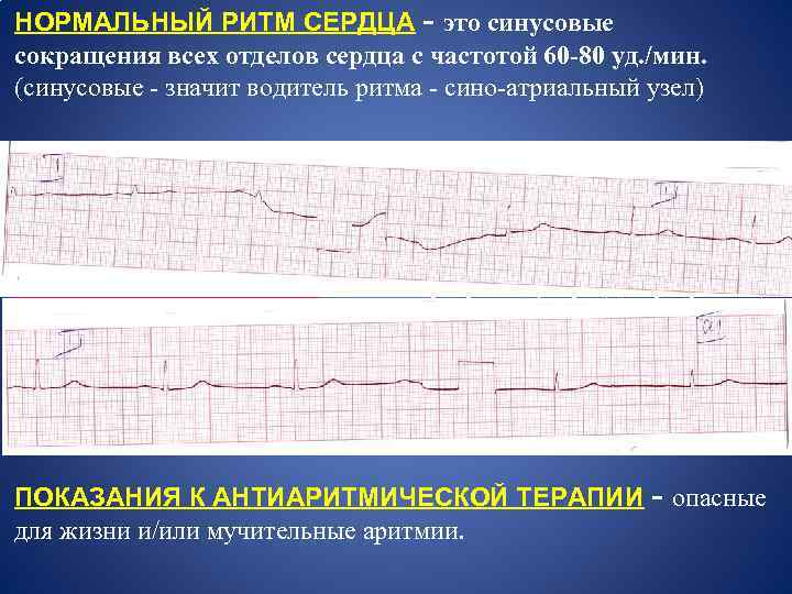НОРМАЛЬНЫЙ РИТМ СЕРДЦА - это синусовые сокращения всех отделов сердца с частотой 60 -80