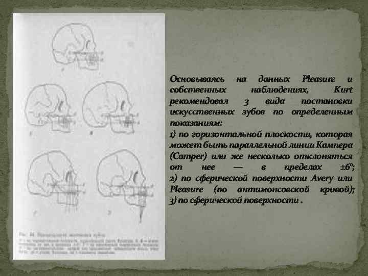 Основываясь на данных Pleasure и собственных наблюдениях, Kurt рекомендовал 3 вида постановки искусственных зубов