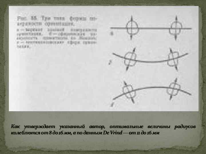 Как утверждает указанный автор, оптимальные величины радиусов колеблются от 8 до 16 мм, а