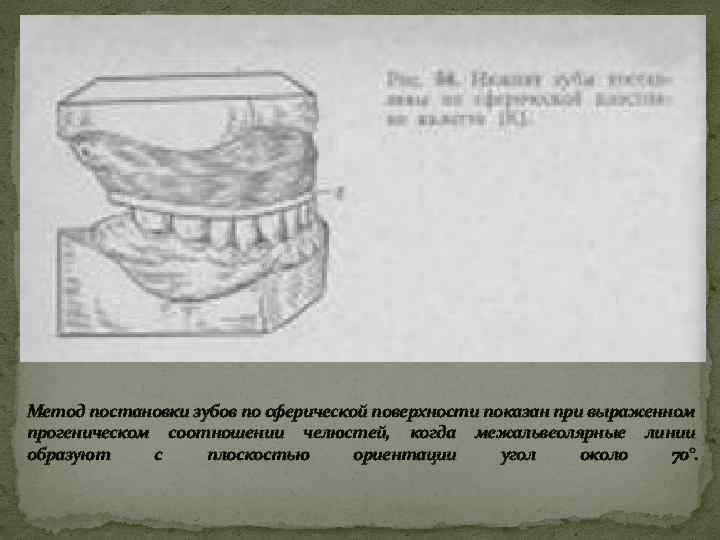 Метод постановки зубов по сферической поверхности показан при выраженном прогеническом соотношении челюстей, когда межальвеолярные