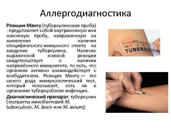 Крови на на туберкулин аллергию анализ по глюкозы анализ уровня плазме крови и по