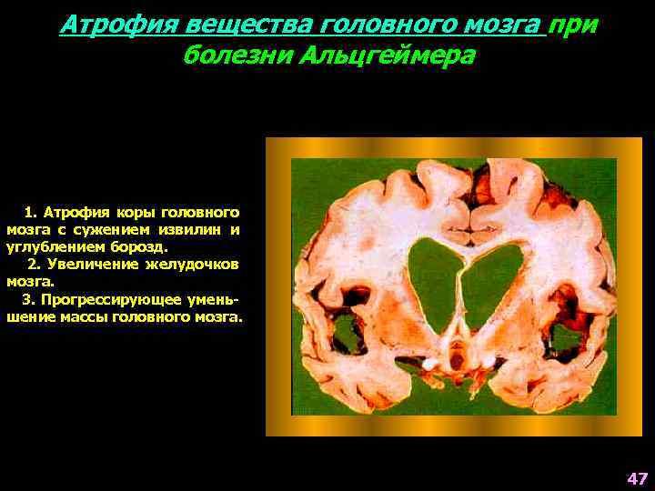 Атрофия вещества головного мозга что это такое