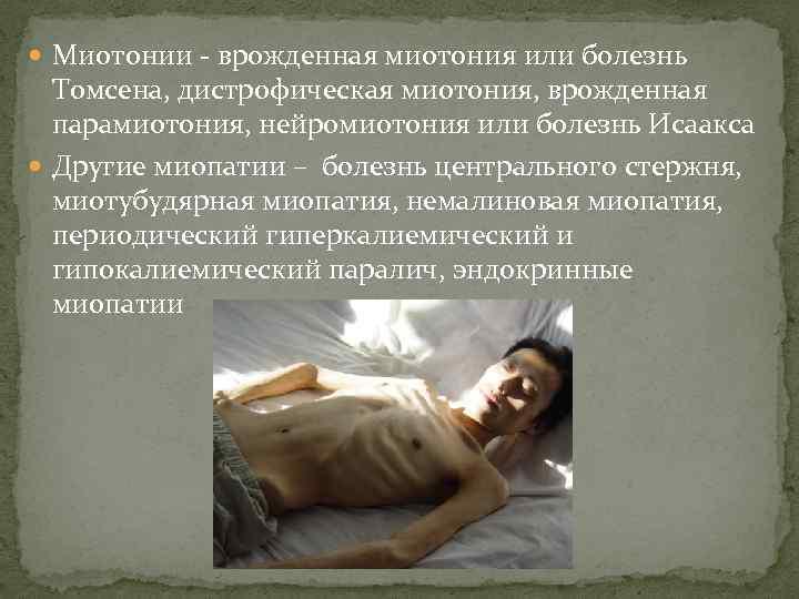 Миотонии - врожденная миотония или болезнь Томсена, дистрофическая миотония, врожденная парамиотония, нейромиотония или