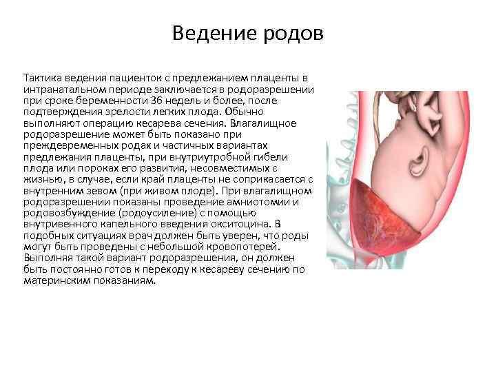 Предлежание плаценты отзывы беременных 33