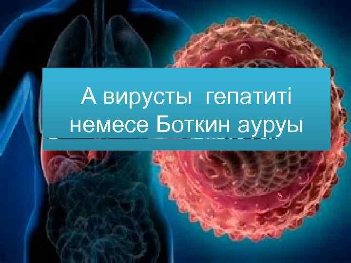 А вирусты гепатиті немесе Боткин ауруы