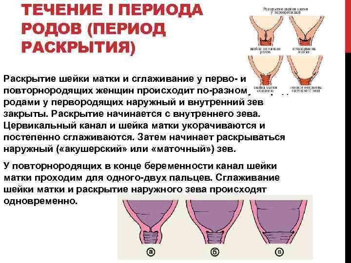 ТЕЧЕНИЕ I ПЕРИОДА РОДОВ (ПЕРИОД РАСКРЫТИЯ) Раскрытие шейки матки и сглаживание у перво- и
