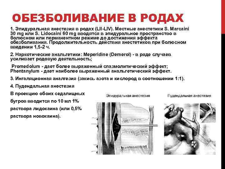 ОБЕЗБОЛИВАНИЕ В РОДАХ 1. Эпидуральная анестезия в родах (LII-LIV). Местные анестетики S. Marcaini 30