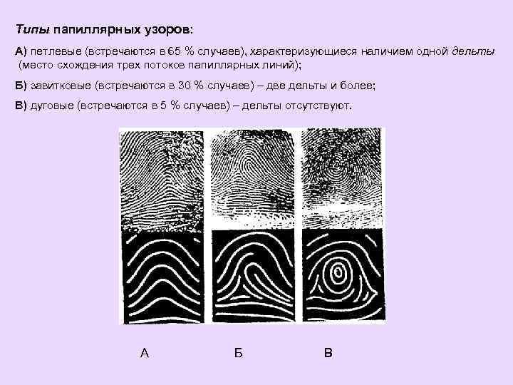 Виды дельт папиллярных узоров