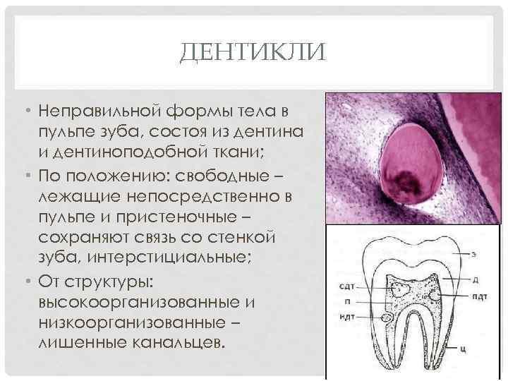 ДЕНТИКЛИ • Неправильной формы тела в пульпе зуба, состоя из дентина и дентиноподобной ткани;