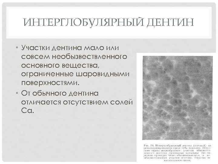 ИНТЕРГЛОБУЛЯРНЫЙ ДЕНТИН • Участки дентина мало или совсем необызвествленного основного вещества, ограниченные шаровидными поверхностями.