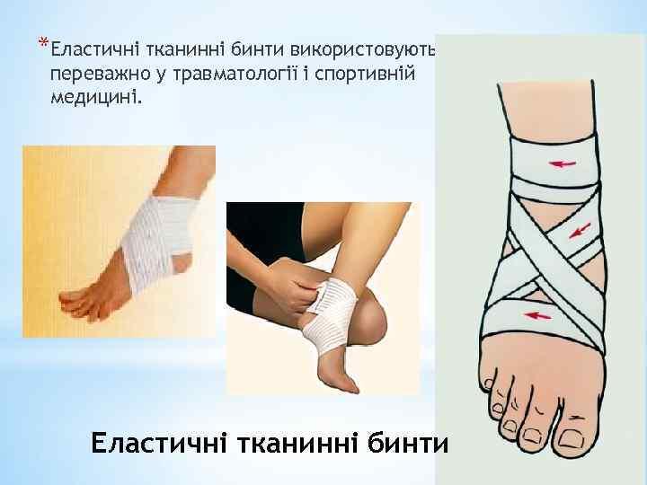*Еластичні тканинні бинти використовують переважно у травматології і спортивній медицині. Еластичні тканинні бинти