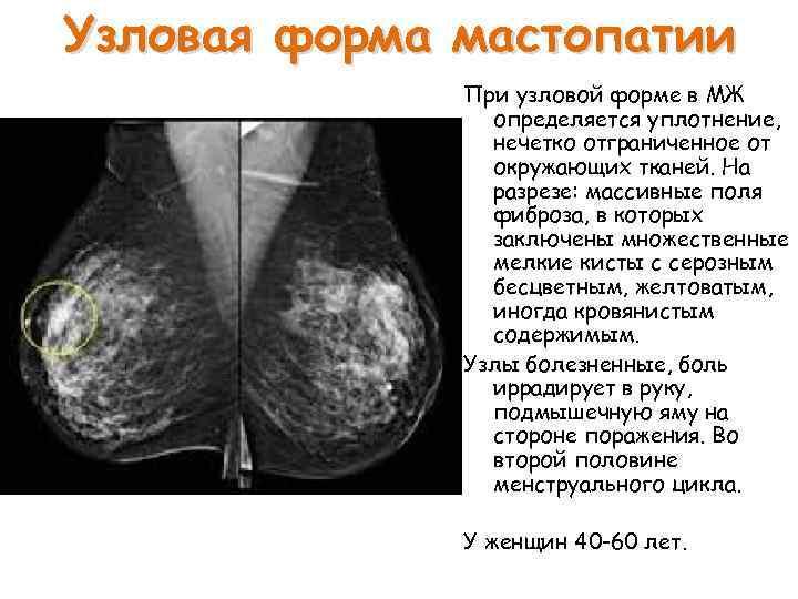 Узловая и диффузная мастопатия картинки