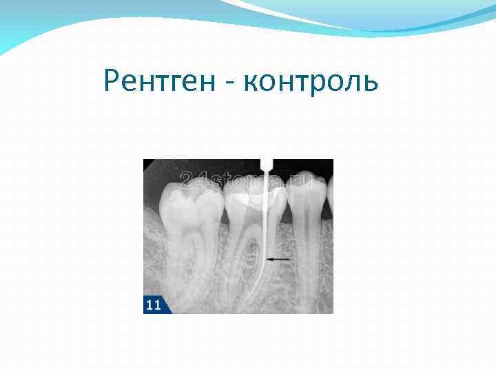 Рентген - контроль