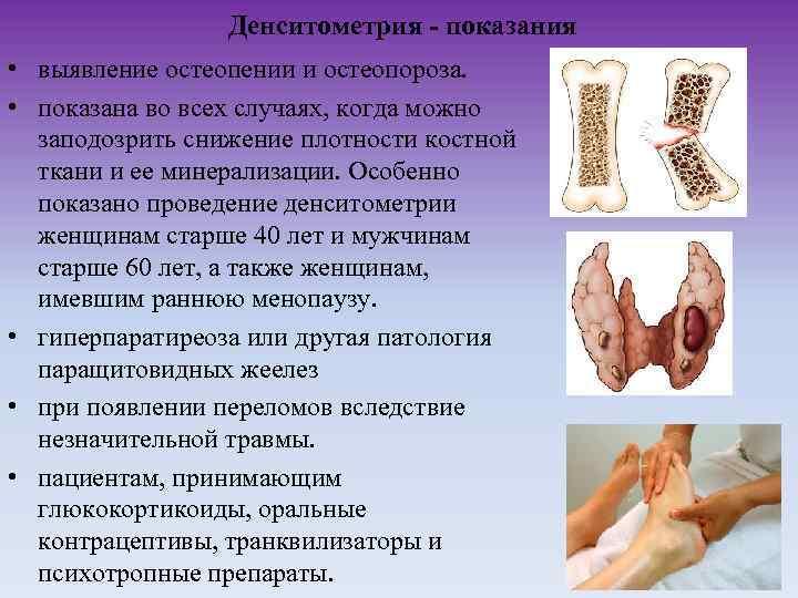 Какая денситометрия лучше всего выявляет остеопороз