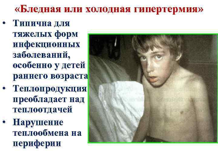 «Бледная или холодная гипертермия» • Типична для тяжелых форм инфекционных заболеваний, особенно у