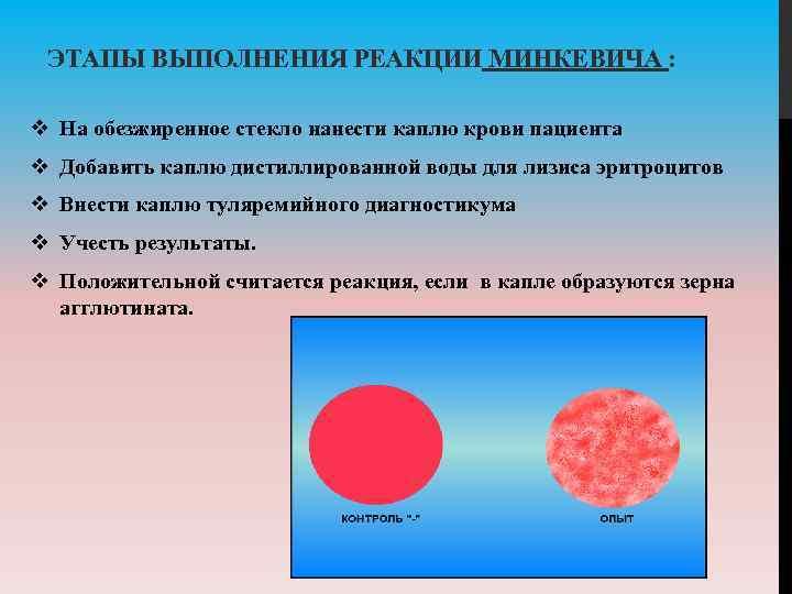 ЭТАПЫ ВЫПОЛНЕНИЯ РЕАКЦИИ МИНКЕВИЧА : v На обезжиренное стекло нанести каплю крови пациента v