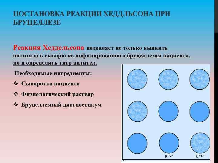 ПОСТАНОВКА РЕАКЦИИ ХЕДДЛЬСОНА ПРИ БРУЦЕЛЛЕЗЕ Реакция Хеддельсона позволяет не только выявить антитела в сыворотке