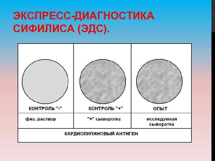 ЭКСПРЕСС-ДИАГНОСТИКА СИФИЛИСА (ЭДС).