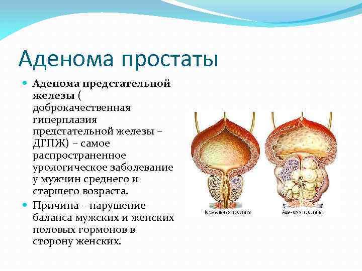 причины аденомы простатиты