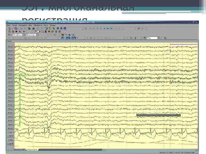 ЭЭГ: многоканальная регистрация