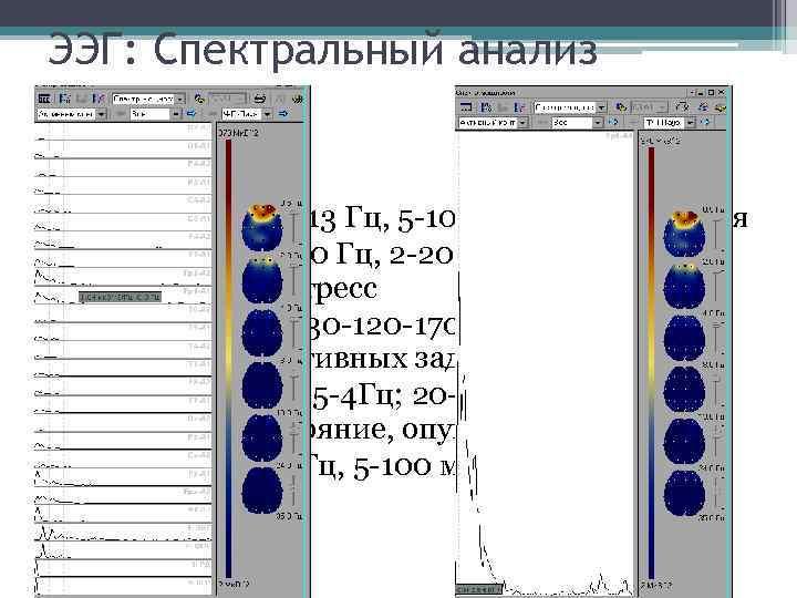 ЭЭГ: Спектральный анализ • Альфа-ритм (8 -13 Гц, 5 -100 мк. В) - ритм