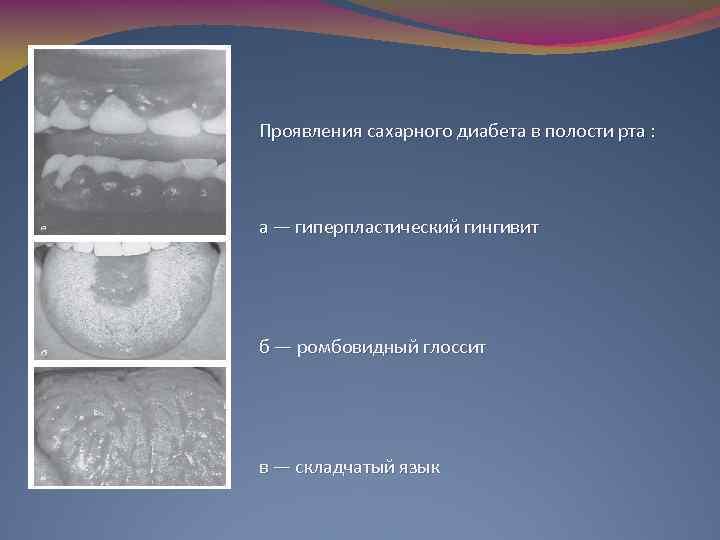 Симптомы сахарного диабета в полости рта