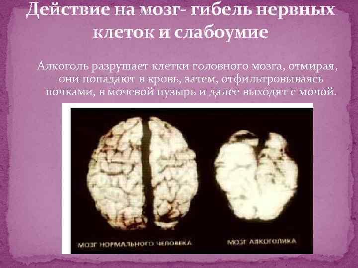 Действие на мозг- гибель нервных клеток и слабоумие Алкоголь разрушает клетки головного мозга, отмирая,