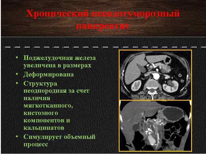 Неоднородная структура поджелудочной железы что это такое