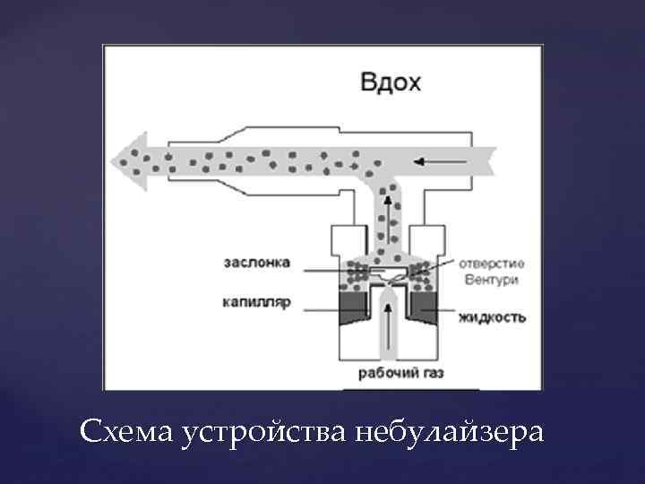 Схема устройства небулайзера