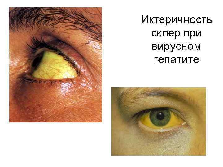 Иктеричность склер при вирусном гепатите