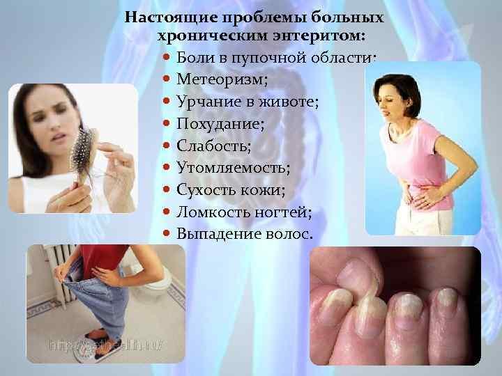 Настоящие проблемы больных хроническим энтеритом: Боли в пупочной области; Метеоризм; Урчание в животе; Похудание;