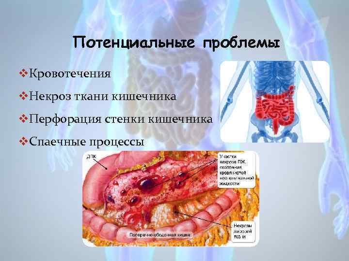 Потенциальные проблемы v. Кровотечения v. Некроз ткани кишечника v. Перфорация стенки кишечника v. Спаечные