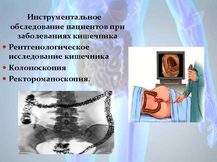 Инструментальное обследование пациентов при заболеваниях кишечника Рентгенологическое исследование кишечника Колоноскопия Ректороманоскопия.