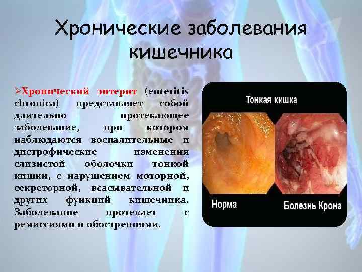 Хронические заболевания кишечника ØХронический энтерит (enteritis chronica) представляет собой длительно протекающее заболевание, при котором