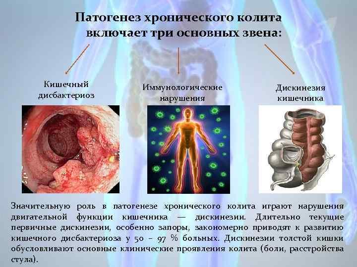 Патогенез хронического колита включает три основных звена: Кишечный дисбактериоз Иммунологические нарушения Дискинезия кишечника Значительную