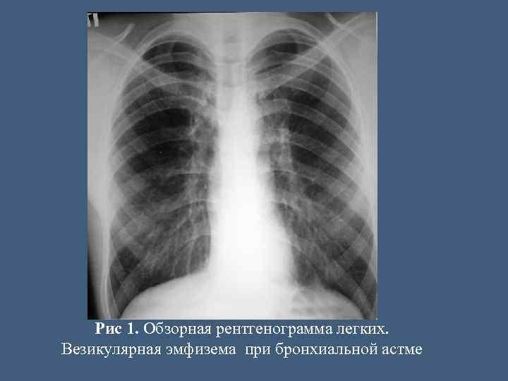 Эмфизема легких и бронхиальная астма