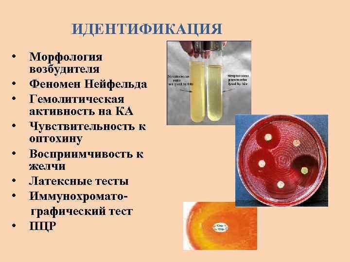ИДЕНТИФИКАЦИЯ • • Морфология возбудителя Феномен Нейфельда Гемолитическая активность на КА Чувствительность к оптохину