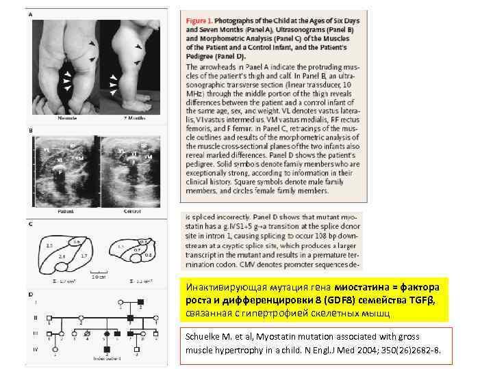Инактивирующая мутация гена миостатина = фактора роста и дифференцировки 8 (GDF 8) семейства TGFβ,