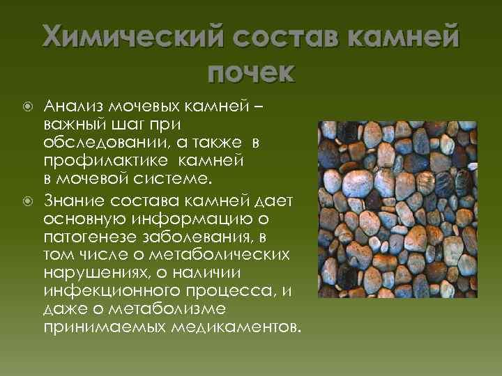 Как сделать анализ почечного камня 493