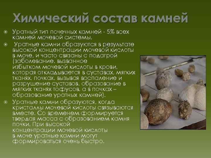 Дробление камней в почках в Киеве: диагностика, удаление | Клиника
