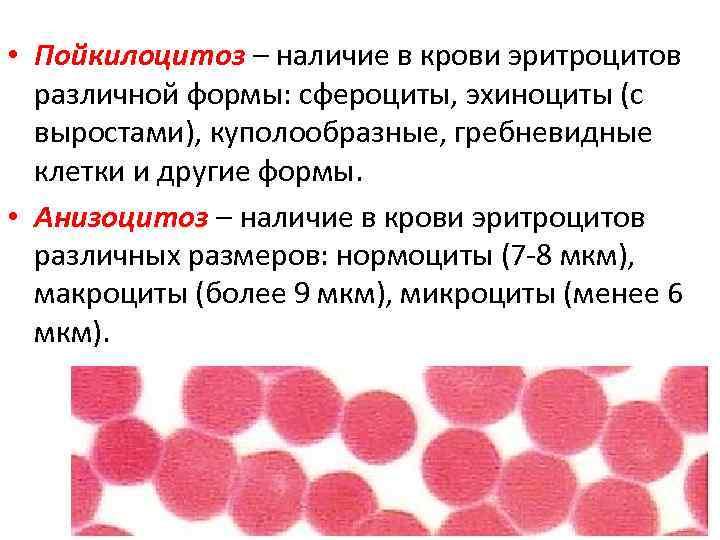 Общем причины в овалоциты анализе крови иппп на кровь после идет анализа