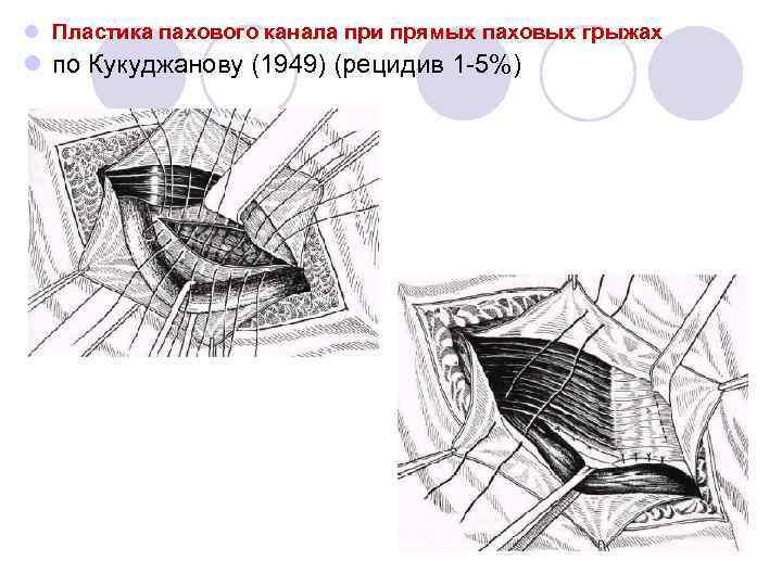 Схема паховой грыжи по кукуджанов