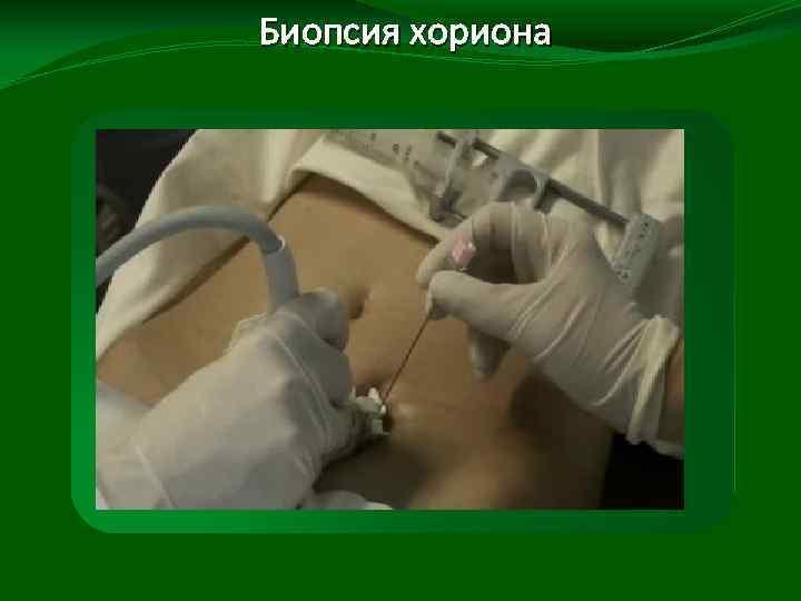 кэш фото биопсия хориона на фото в основном х даже после смерти
