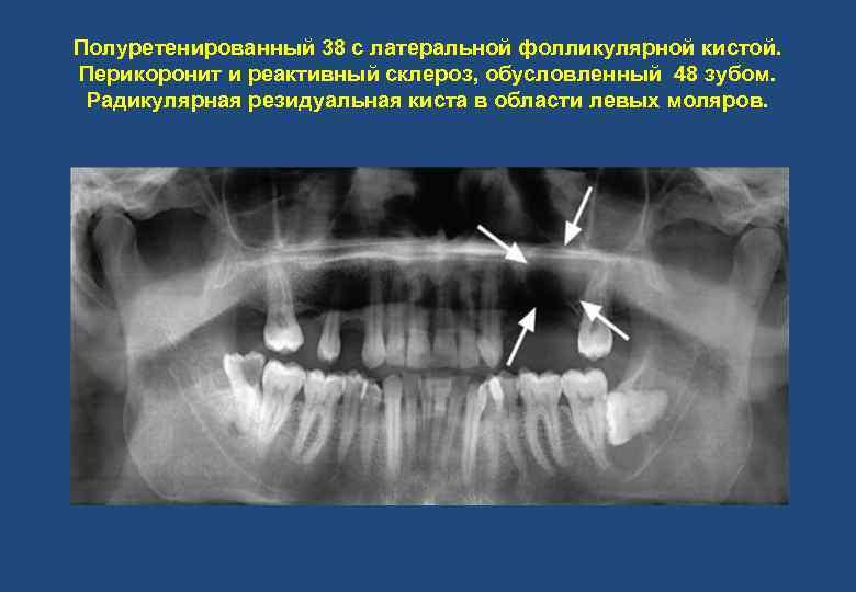 Полуретенированный 38 с латеральной фолликулярной кистой. Перикоронит и реактивный склероз, обусловленный 48 зубом. Радикулярная