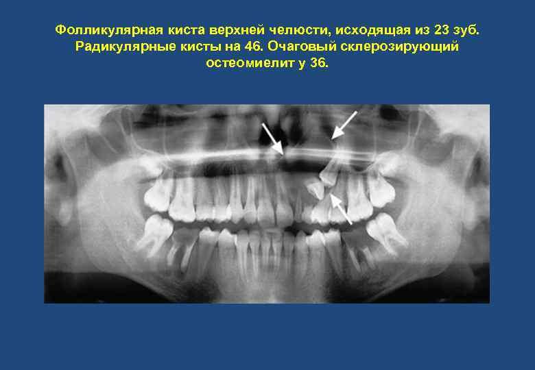 Фолликулярная киста верхней челюсти, исходящая из 23 зуб. Радикулярные кисты на 46. Очаговый склерозирующий