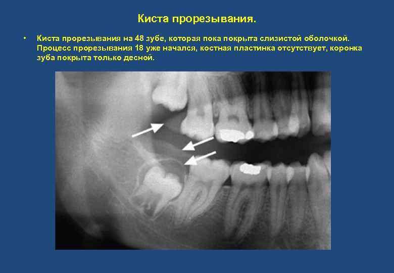 Киста прорезывания. • Киста прорезывания на 48 зубе, которая пока покрыта слизистой оболочкой. Процесс