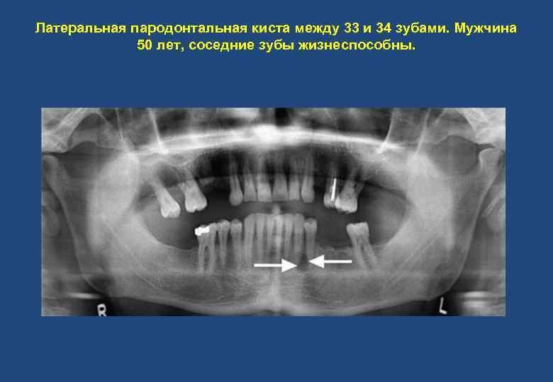 Латеральная пародонтальная киста между 33 и 34 зубами. Мужчина 50 лет, соседние зубы жизнеспособны.