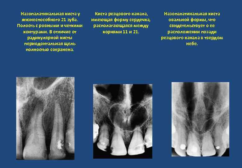 Назопалатинальная киста у жизнеспособного 21 зуба. Полость с ровными и четкими контурами. В отличие